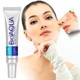 crema-tratament-antiacnee-si-ingrijirea-fetei-bioaqua-30gr-3.jpg